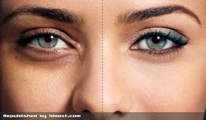 درمان کبودی و تیرگی دور چشم