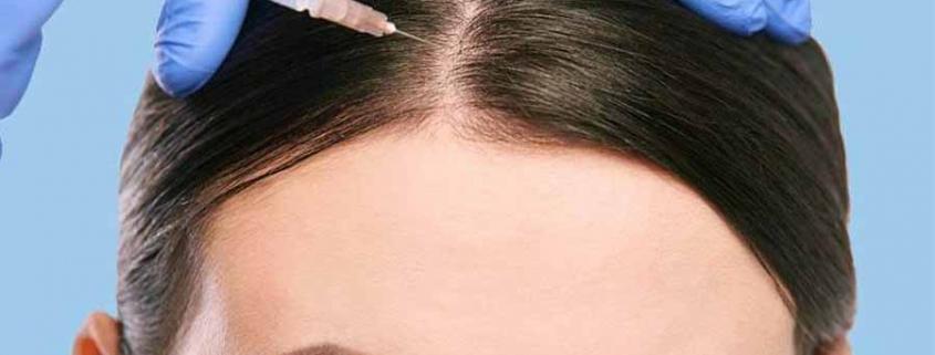 درمان ریزش مو توسط مزوتراپی