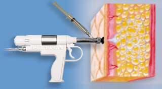تزریق بوتاکس برای درمان تعریق زیاد