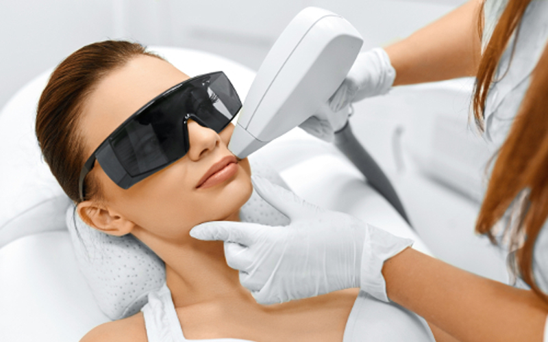 درمان موهای زائد با لیزر