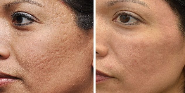 کاربرد آر اف فرکشنال در جوانسازی پوست