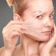 مضرات لایه برداری پوست با محلول های شیمیایی