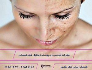مضرات لایه برداری پوست با مواد شیمیایی