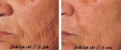جوانسازی پوست با آر اف فرکشنال