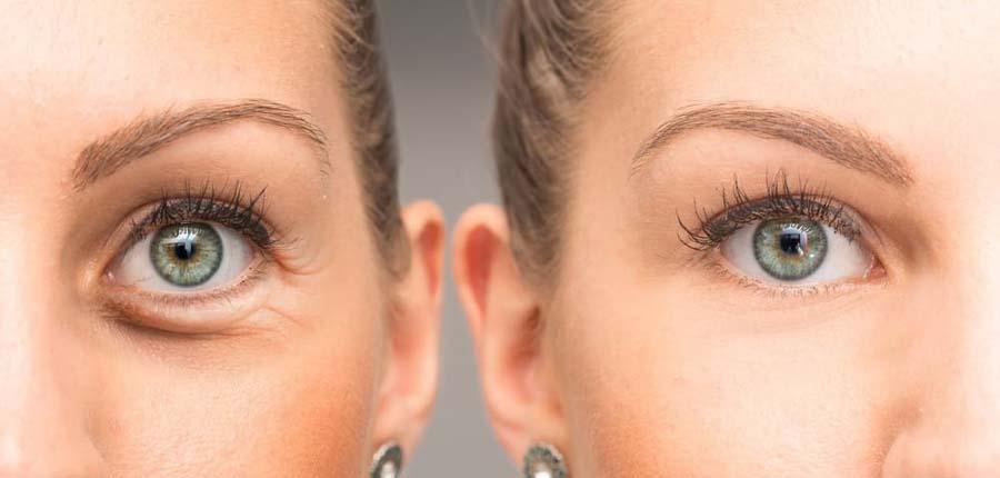 انقباض چشم-بوتاکس چیست