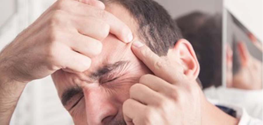 درمان آکنه و پیشگیری از بروز آن