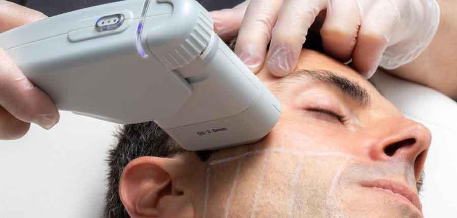 ایمنی درمانهای صورت هایفو-عوارض هایفو