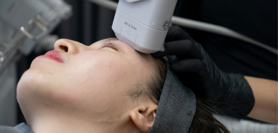 مزایای درمان صورت با استفاده از هایفو-عوارض هایفو