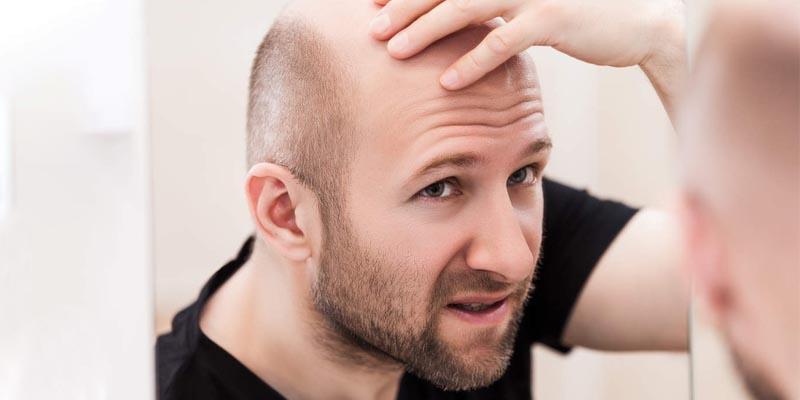 چگونه میتوان مانع ریزش مو در مردان شد؟-درمان ریزش مو