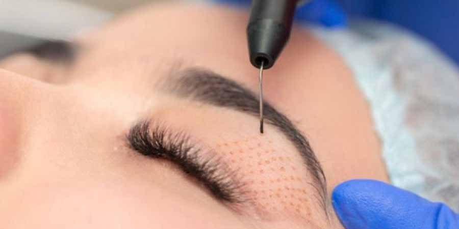 بعد از درمان و ریکاوری-ترمیم پوست صورت