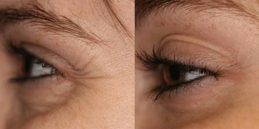 بررسی و آماده سازی قبل از درمان-ترمیم پوست صورت