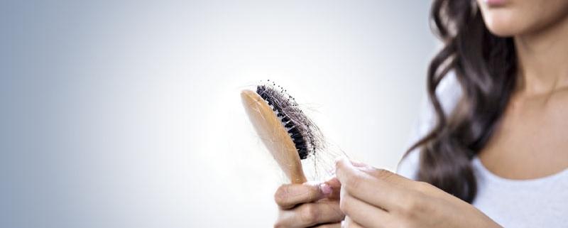 معرفی 10 روش کاربردی درمان ریزش مو برای خانم ها و آقایان