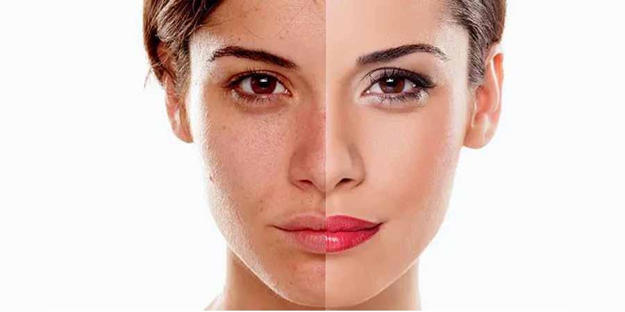 ترمیم پوست با پلاسما مناسب چه افرادی است؟-ترمیم پوست صورت