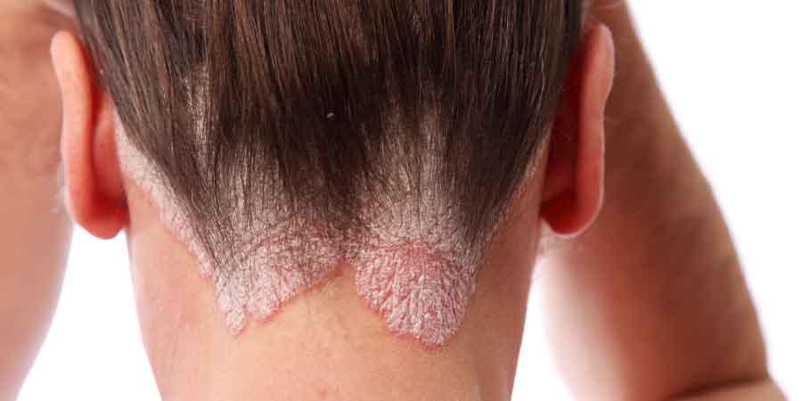 پسوریازیس-ترک پوست