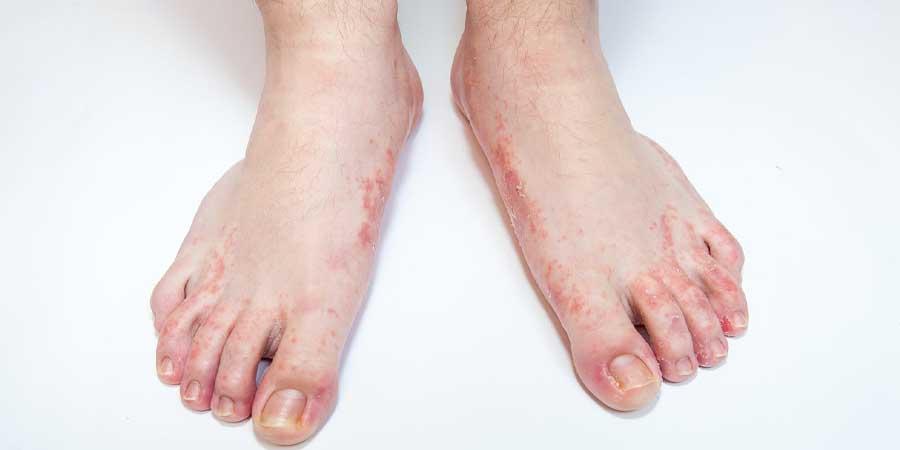 بیماری پای ورزشکار یا قارچ-ترک پوست