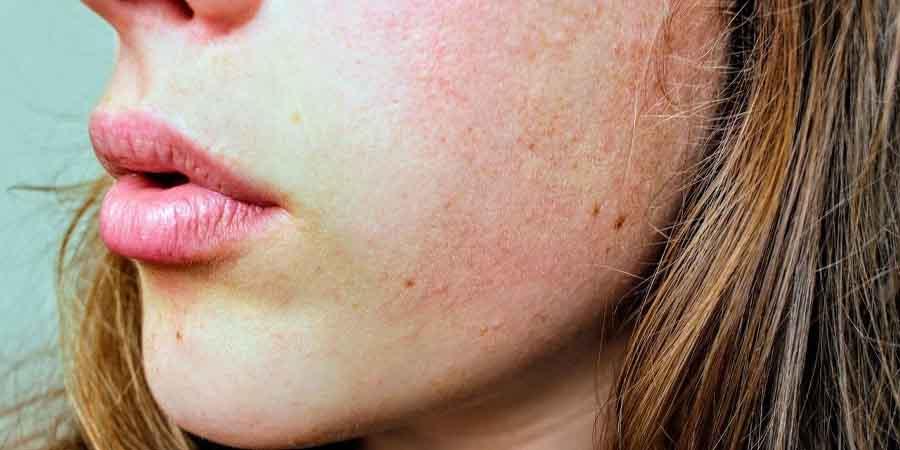 پوست خشک-ترک پوست