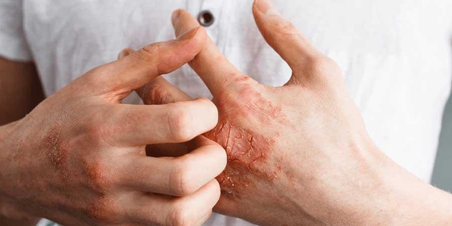اگزما-ترک پوست