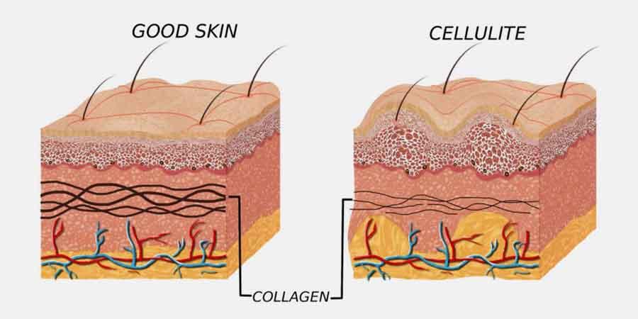 علت ایجاد سلولیت چیست؟