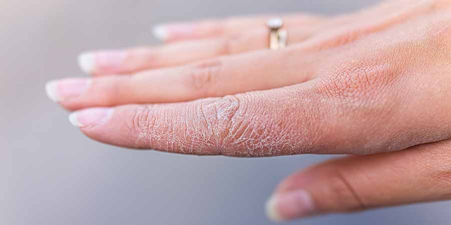 ترک پوست چیست؟
