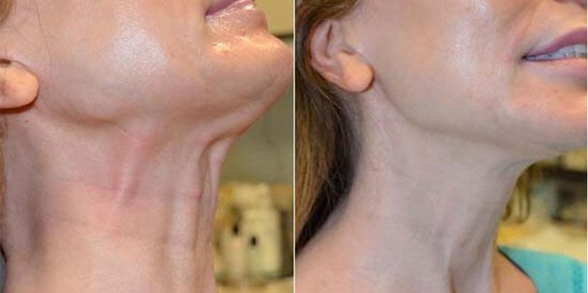 روشهای درمان چروک گردن