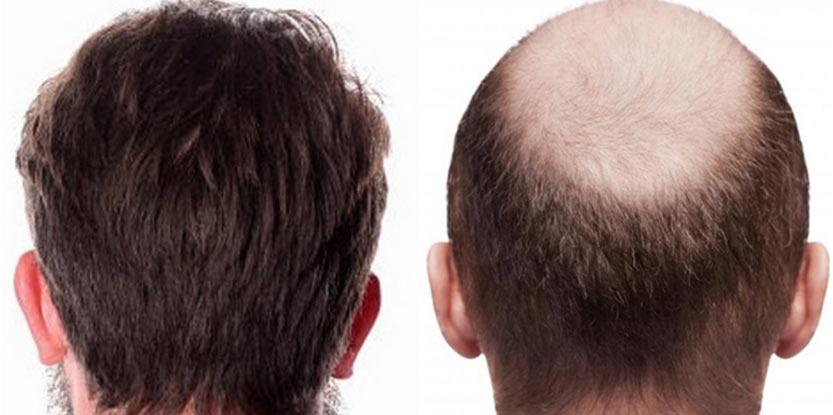 کمک به افزایش تراکم مو در کلینیکهای زیبایی